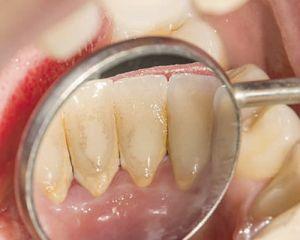 Você sabia? O cálculo dental pode ser a porta de entrada para uma doença periodontal